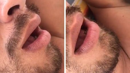 FLY LANDS IN MAN'S MOUTH AS HE SLEEPS