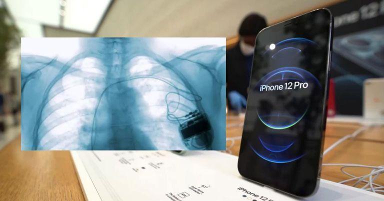 iPhone: Gefahr für Herzschrittmacher – so warnt Apple davor